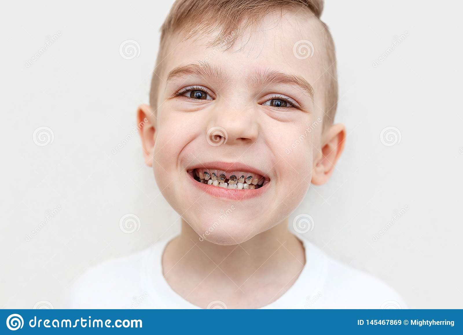 El cierre para arriba tir? de los dientes de un muchacho con las caries Atenci?n sanitaria, higiene dental y concepto de la ni?ez