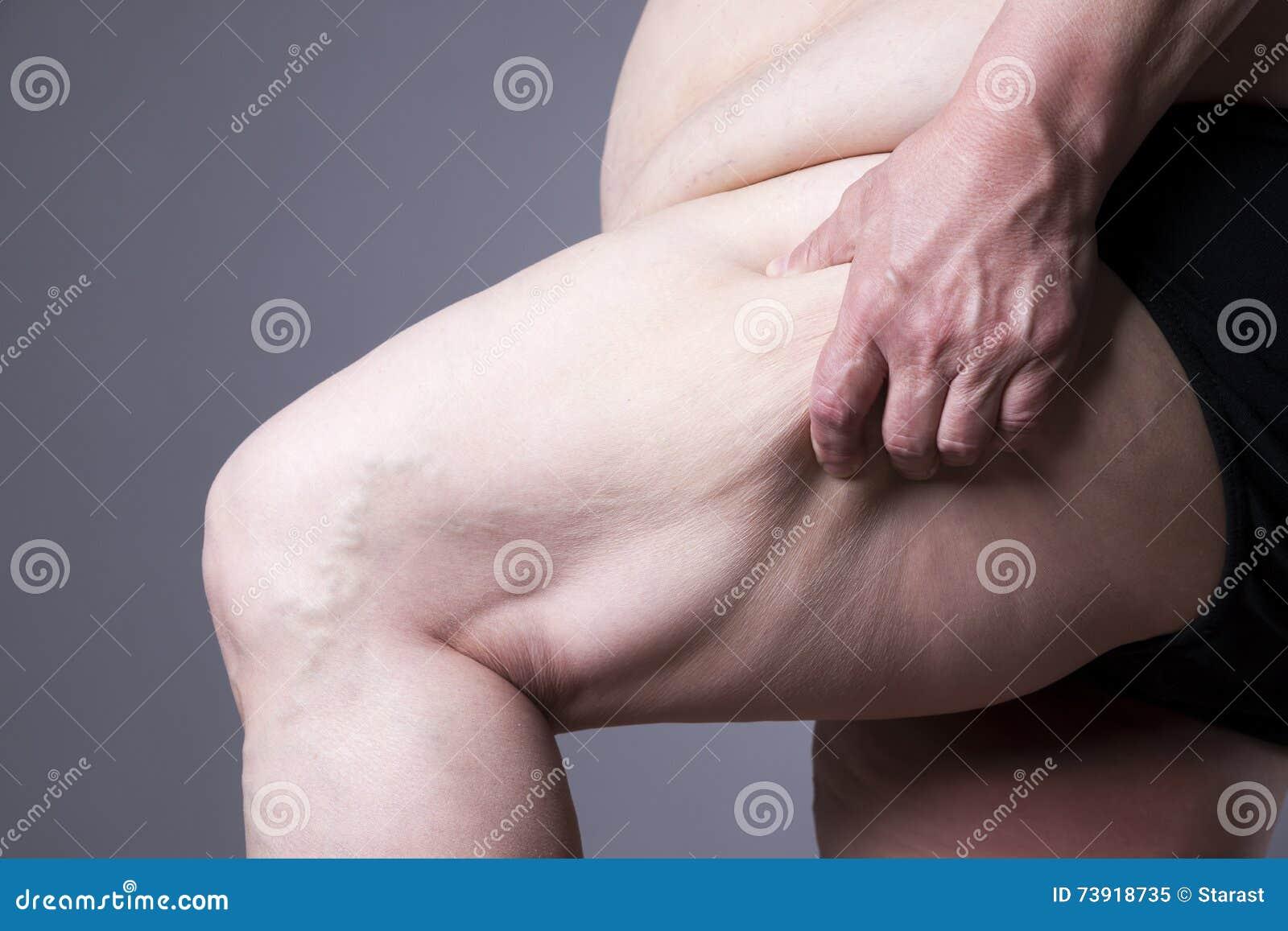 El cuerpo femenino de la obesidad, las piernas gordas de la mujer se cierra para arriba