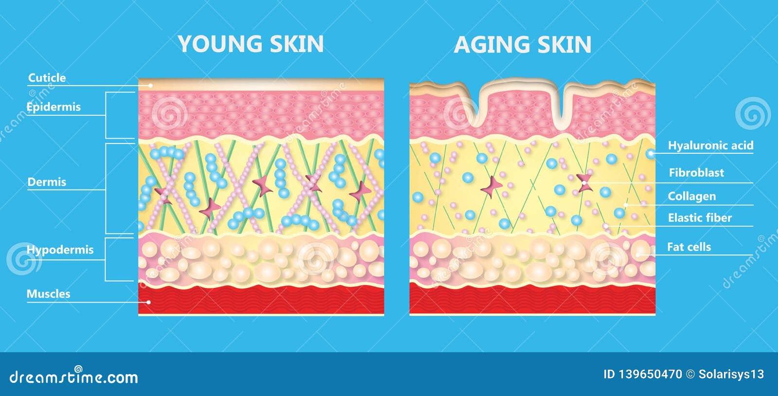 El diagrama de una piel más joven y de la piel de envejecimiento