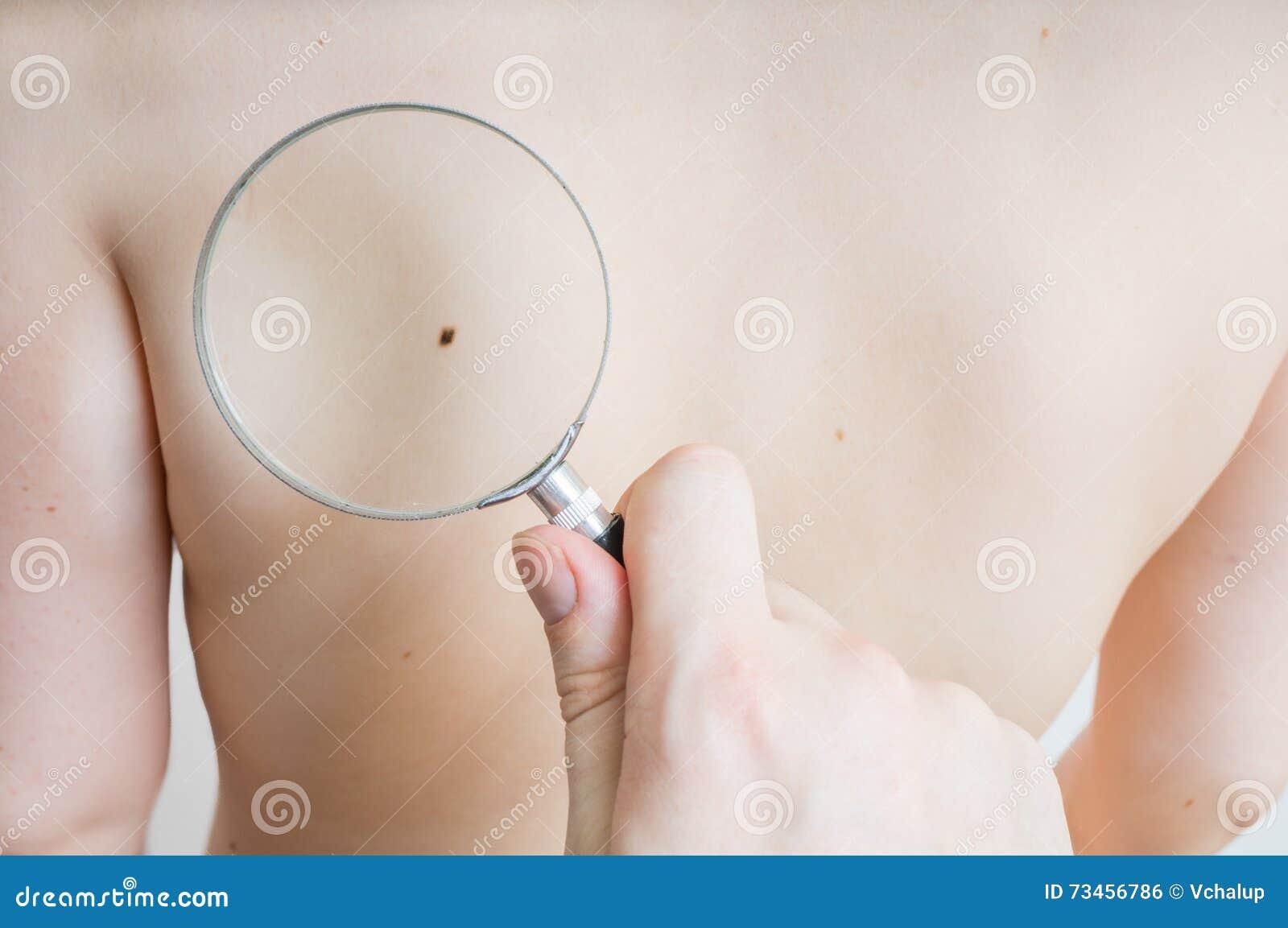 El doctor sostiene la lupa disponible y está examinando la piel paciente para el melanoma