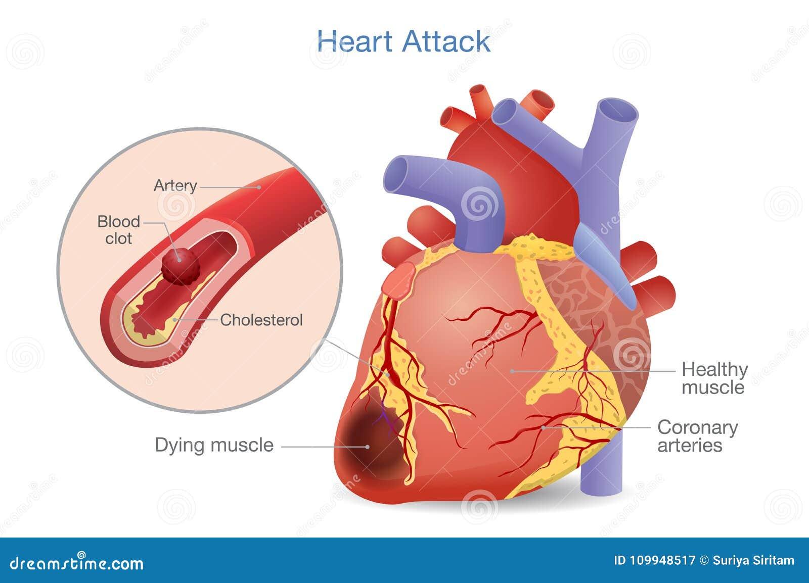 trombosis y presión arterial