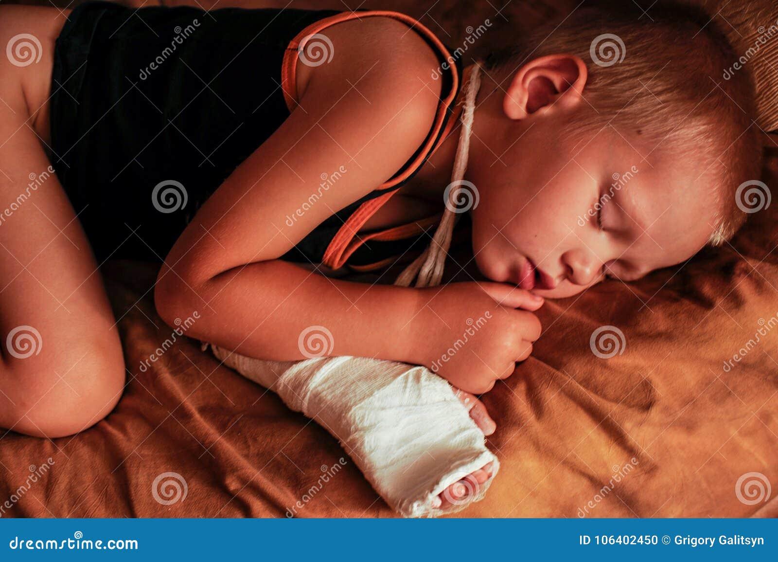 El muchacho europeo está durmiendo después de procedimientos médicos Se venda su brazo y el molde de yeso en ella
