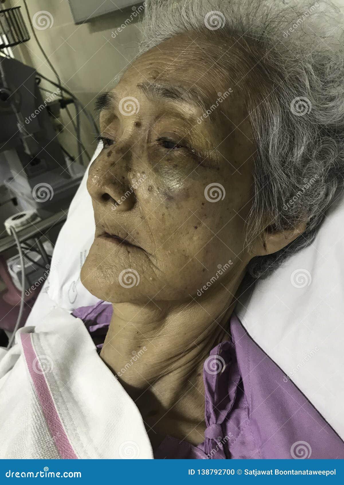El paciente mayor asiático de la mujer que miente en cama en el hospital, infección del virus, plaquetas de sangre bajas, contusi