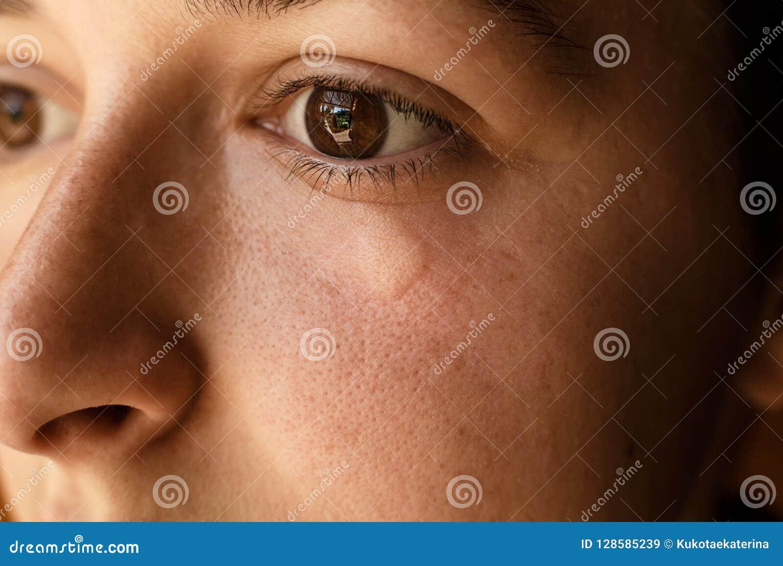 picaduras de insectos en el ojo