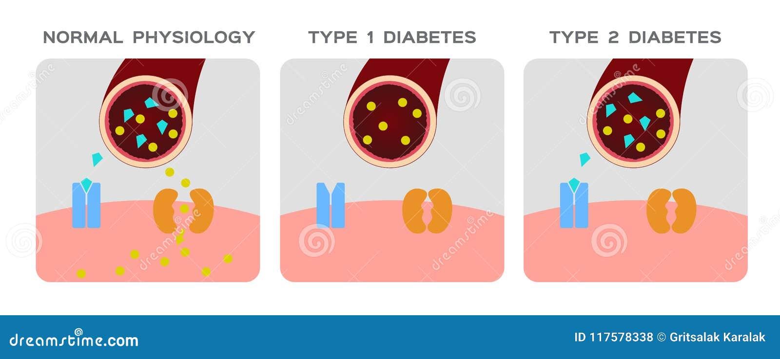 animaciones de diabetes mellitus tipo 2