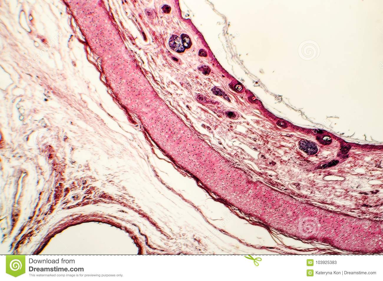 Elastic Cartilage Of Human Outer Ear Stock Image Image Of