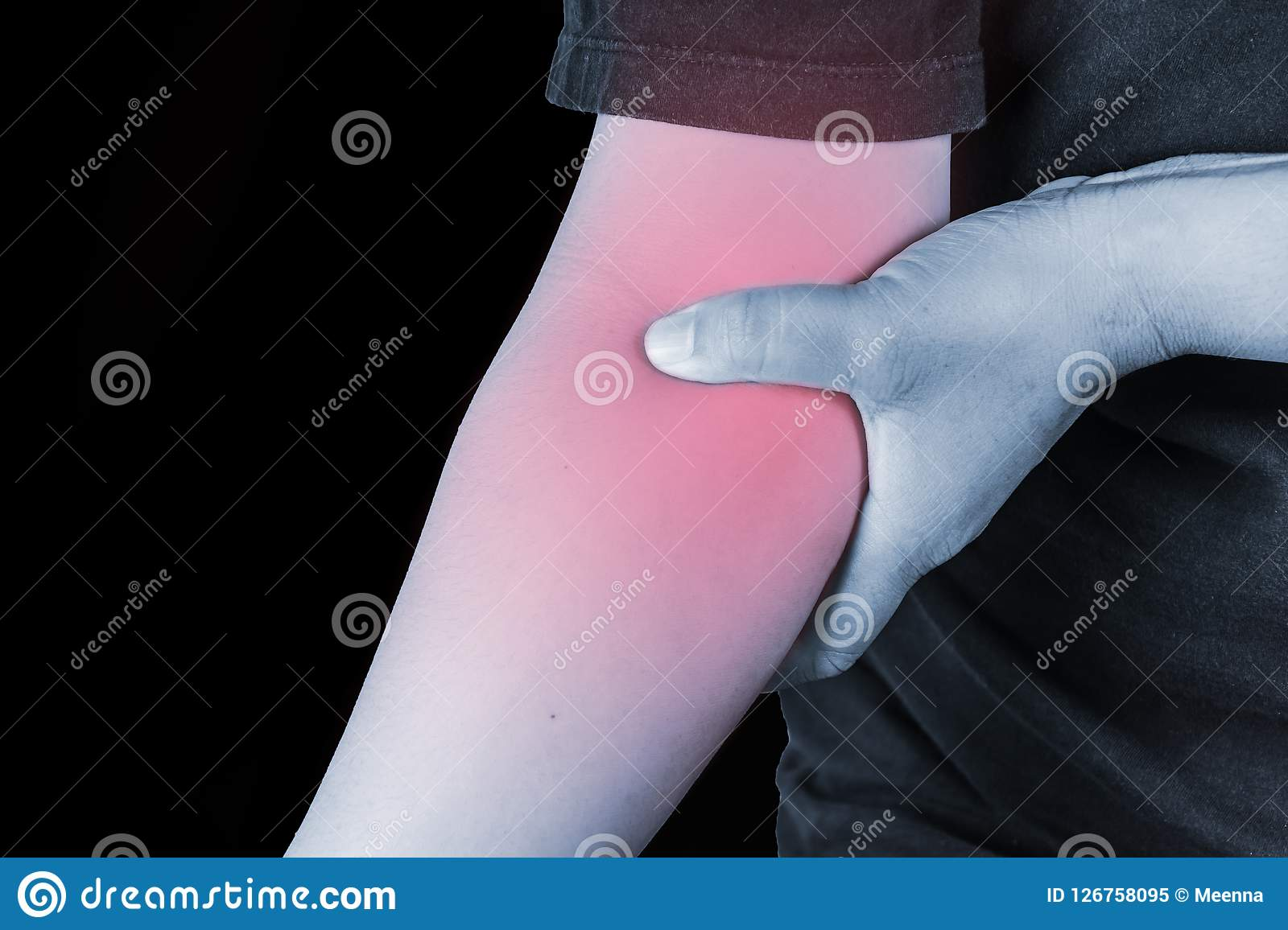 Elbow Injury In Humans .elbow Pain,joint Pains People Medical, M ...