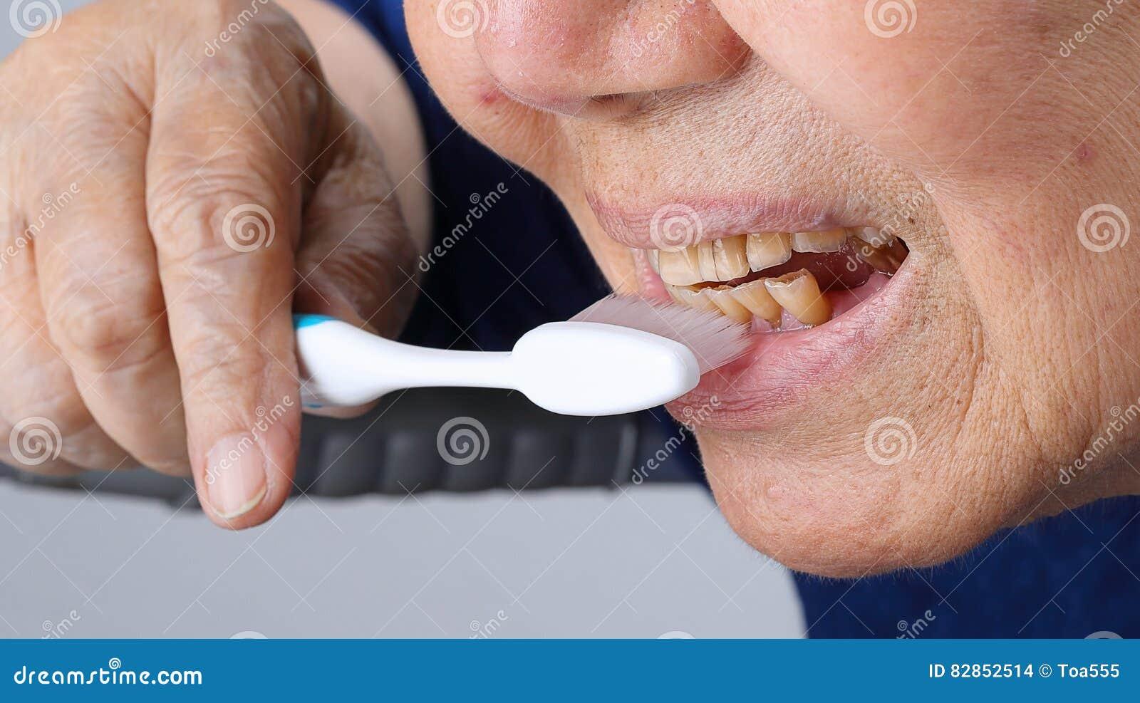 Elderly tooth attrition