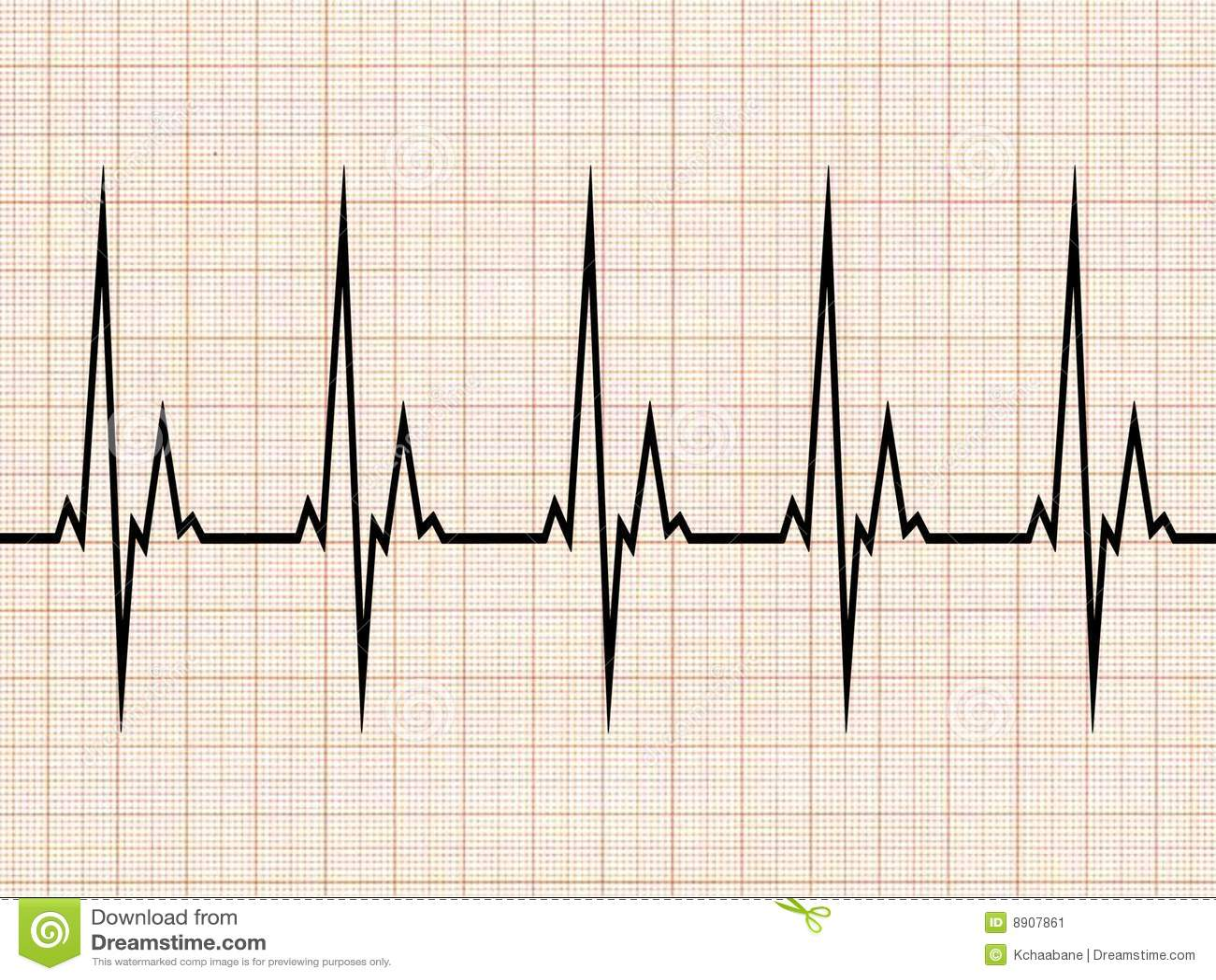 electrocardiogram stock image image 8907861 ekg vector diagram ekg vector leads