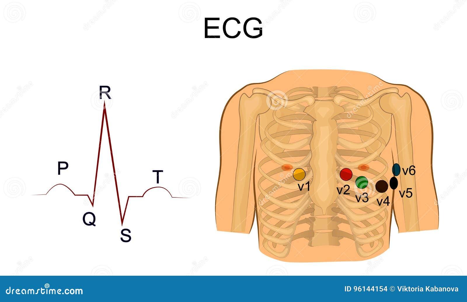12 bly-EKG dating vid varje ålder
