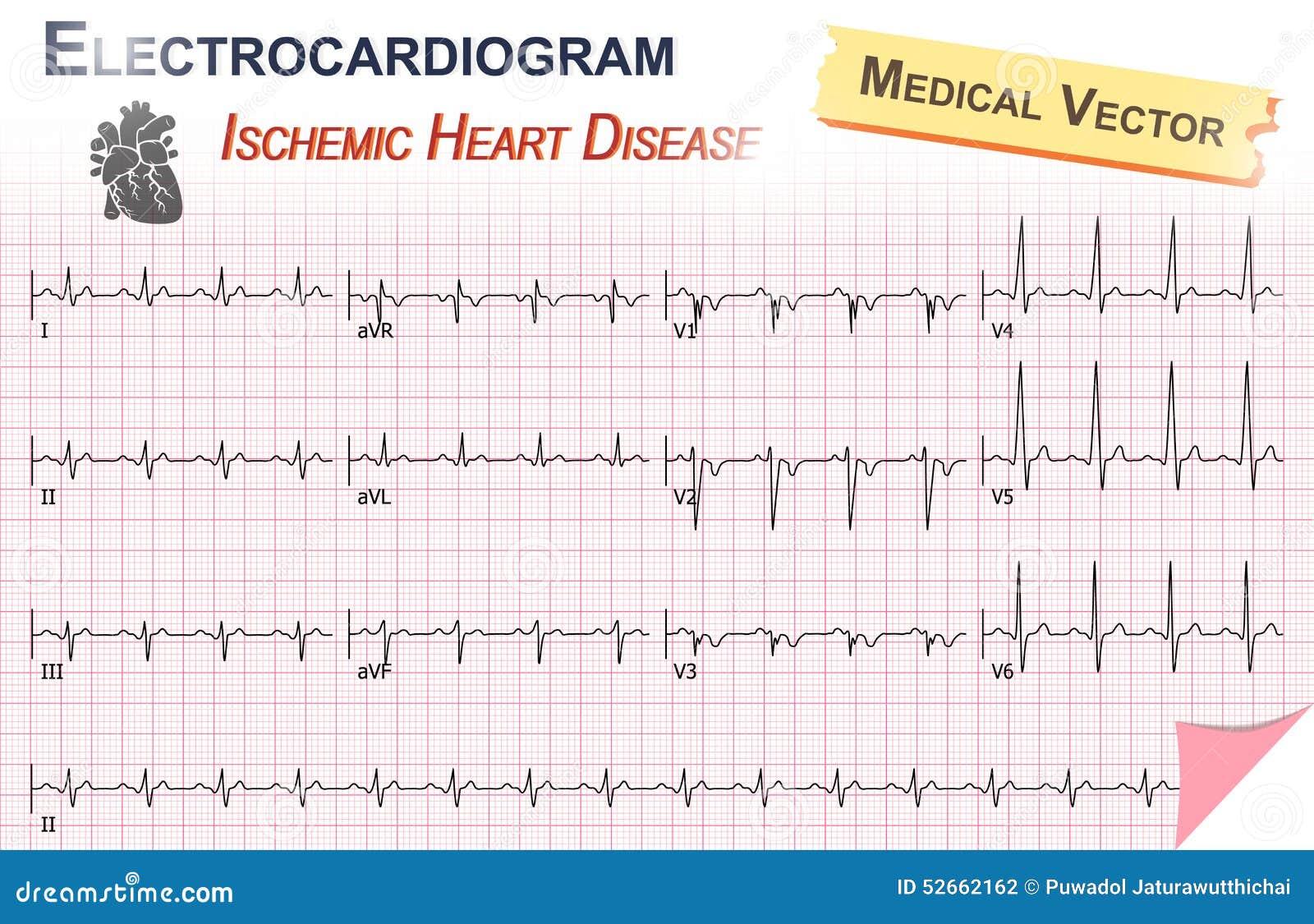 Electrocardiograma (ECG, ECG) De La Enfermedad Cardíaca Isquémica ...