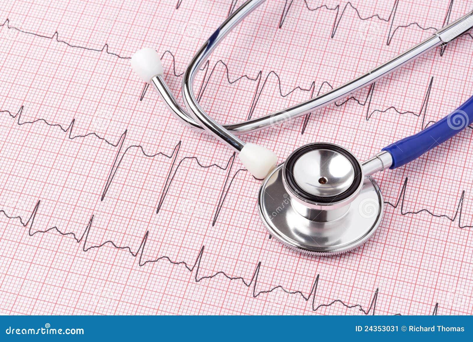 Electrocardiograma y estetoscopio