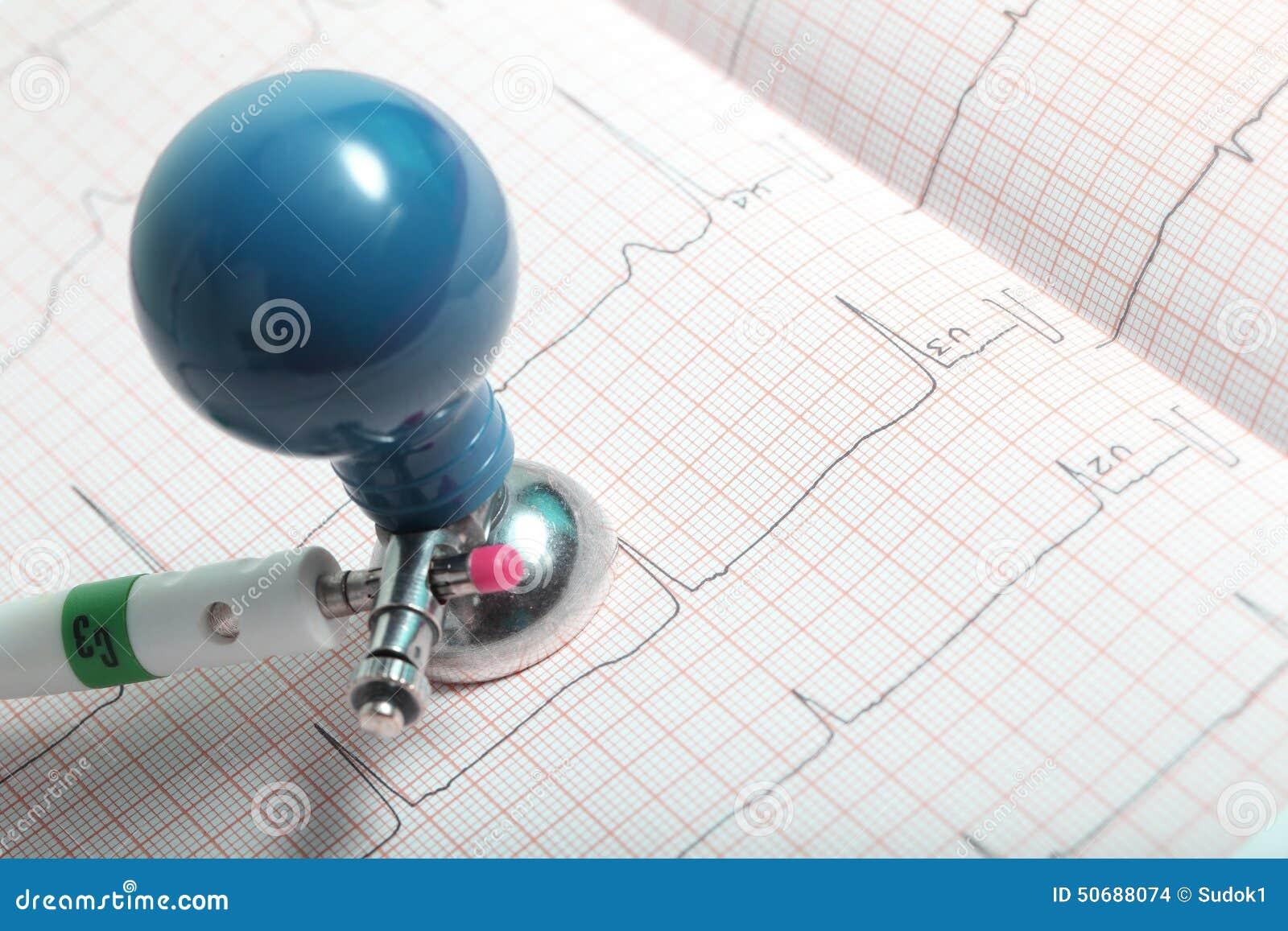 electrode and ecg chart closeup stock photo image 50688074. Black Bedroom Furniture Sets. Home Design Ideas