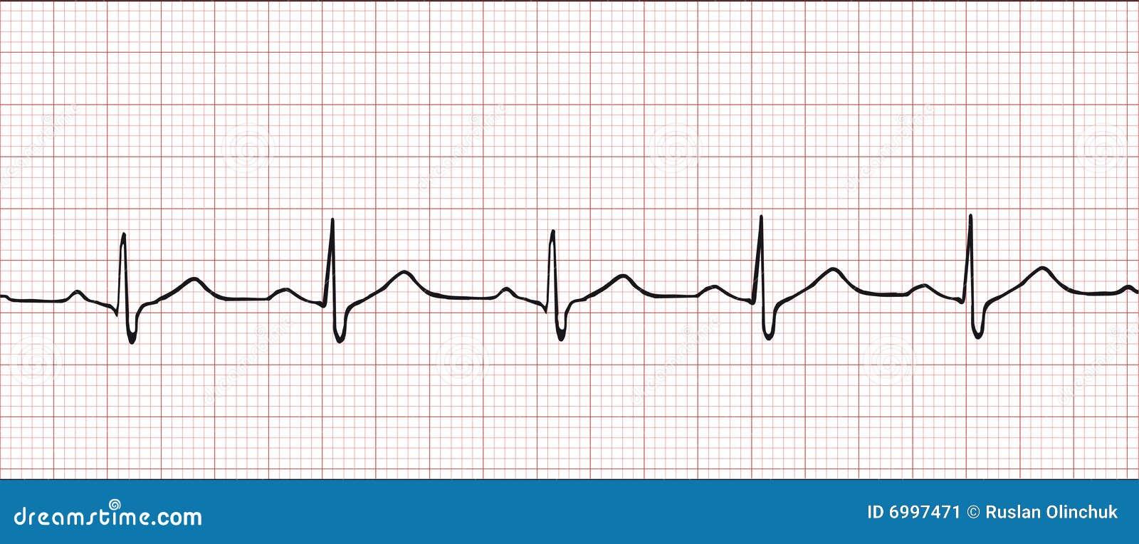 Electronic Cardiogram Stock Image - Image: 6997471
