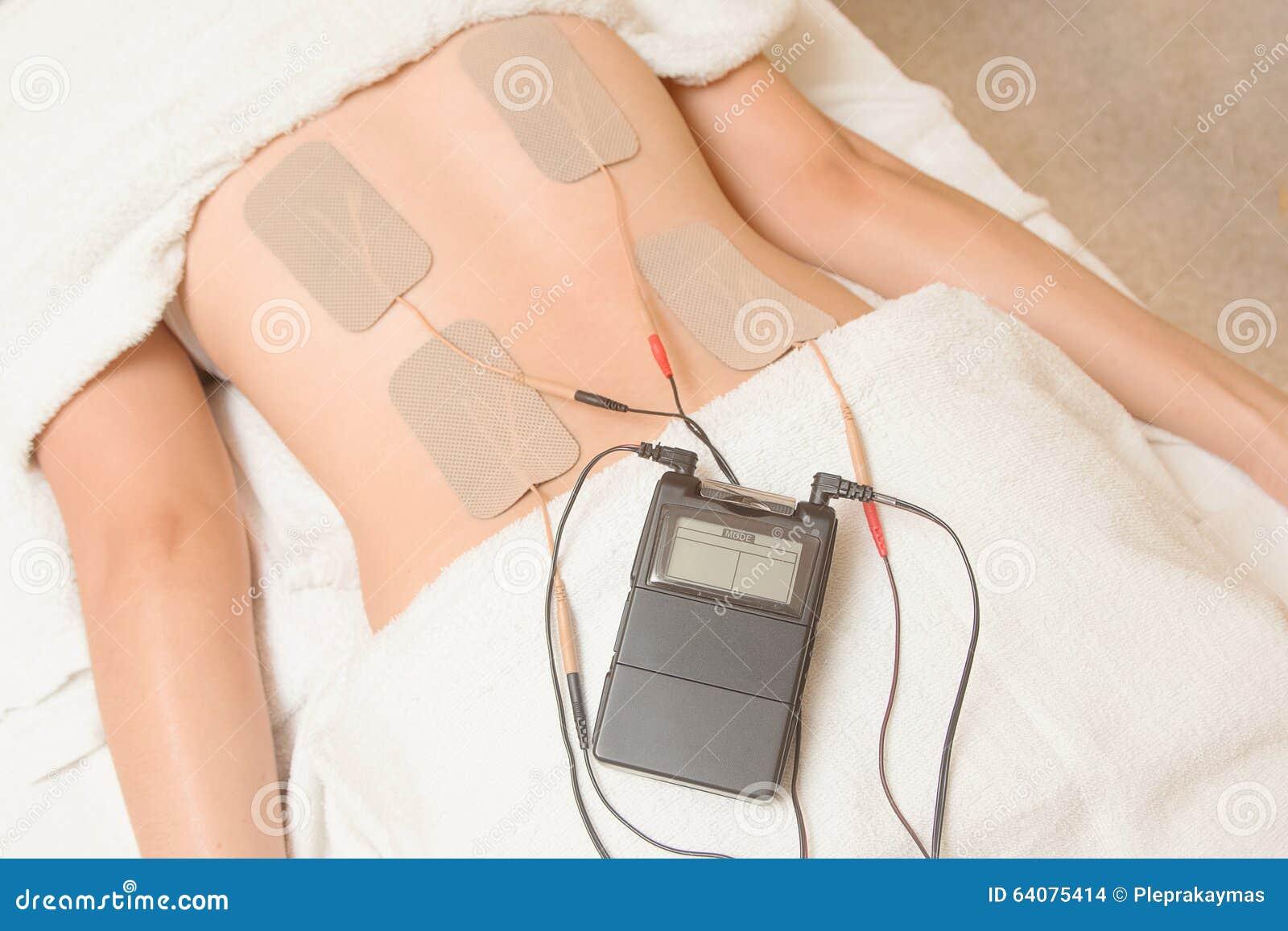 Elektroden Des Zehngerätes Auf Rückenmuskel Stockfoto - Bild von ...
