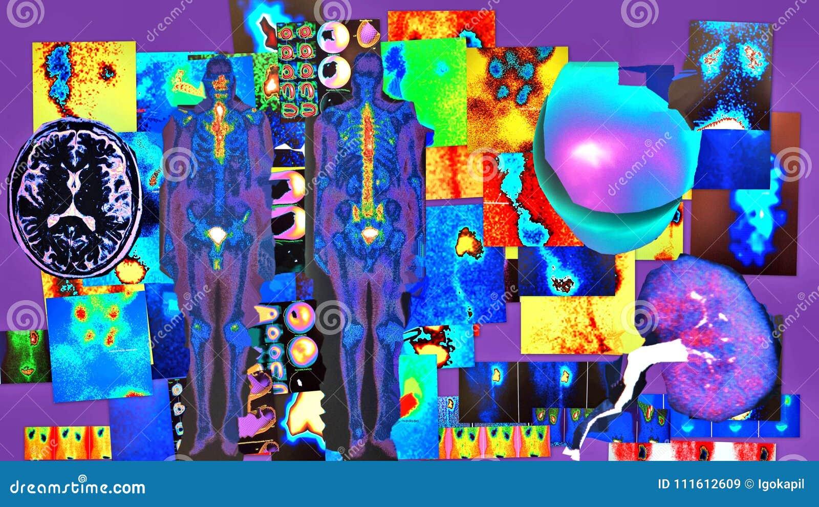 Elementos de color violetas de diagnóstico radiológicos