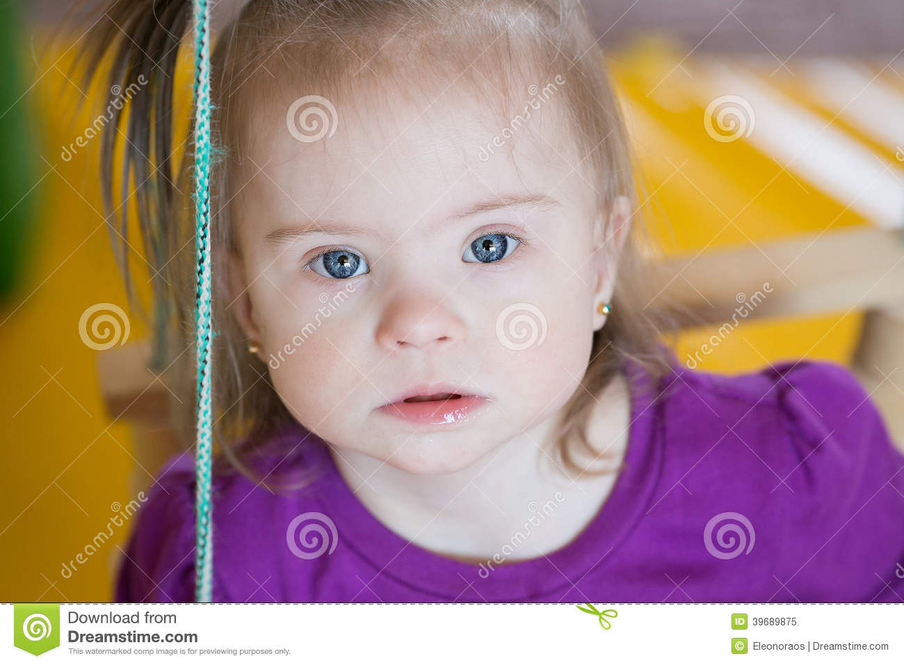Emotions Of A Little Baby Girl With Down Syndrome Stock