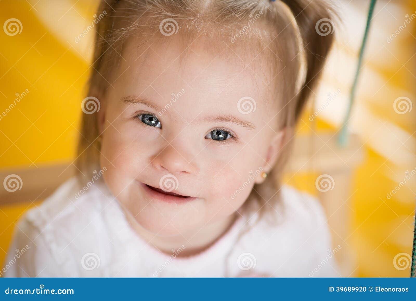 Даун фото маленьких детей