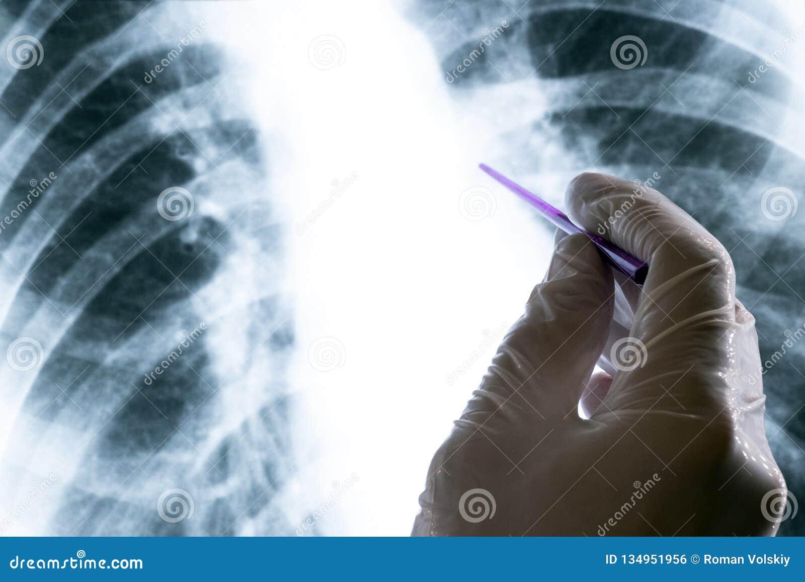 En doktor eller en laborant i en vit handske rymmer en pekare över en bröstkorgröntgenstråle Begrepp av tuberkulossjukdomen