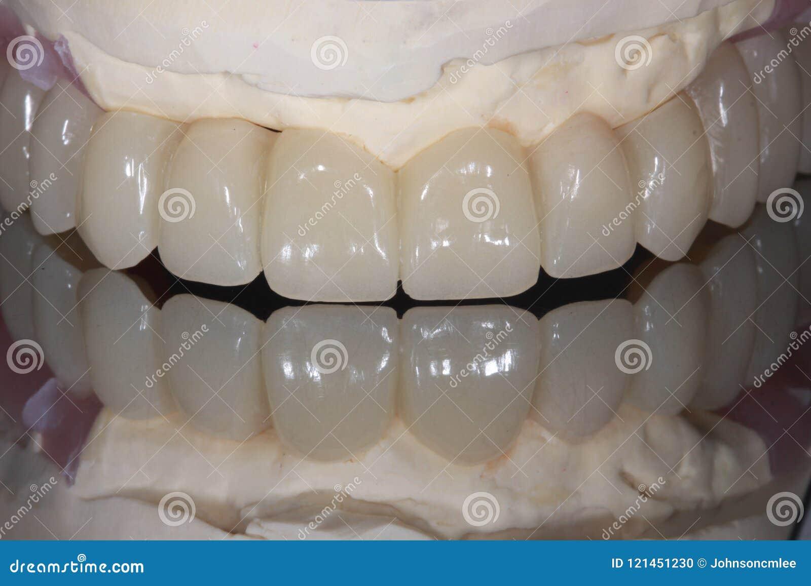 En full ärke- bro för tand- implantat med spegelreflexion