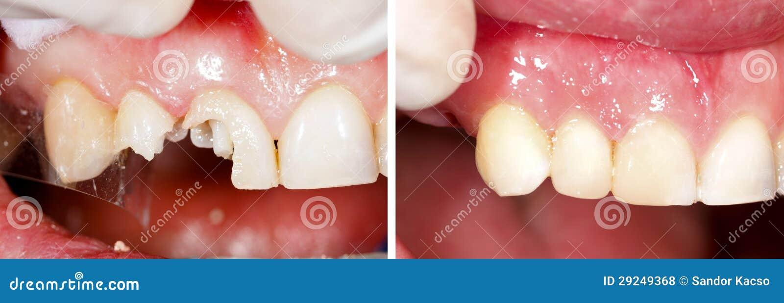 Download Enchimento Destructed Dos Dentes Foto de Stock - Imagem de dentadura, fratura: 29249368