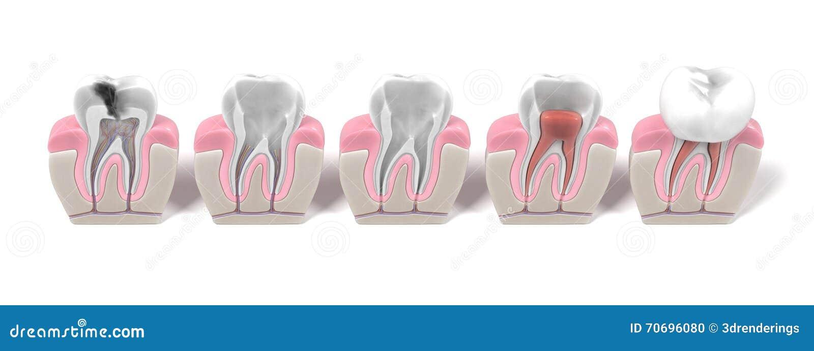 Endodontics - rota kanaltillvägagångssättet