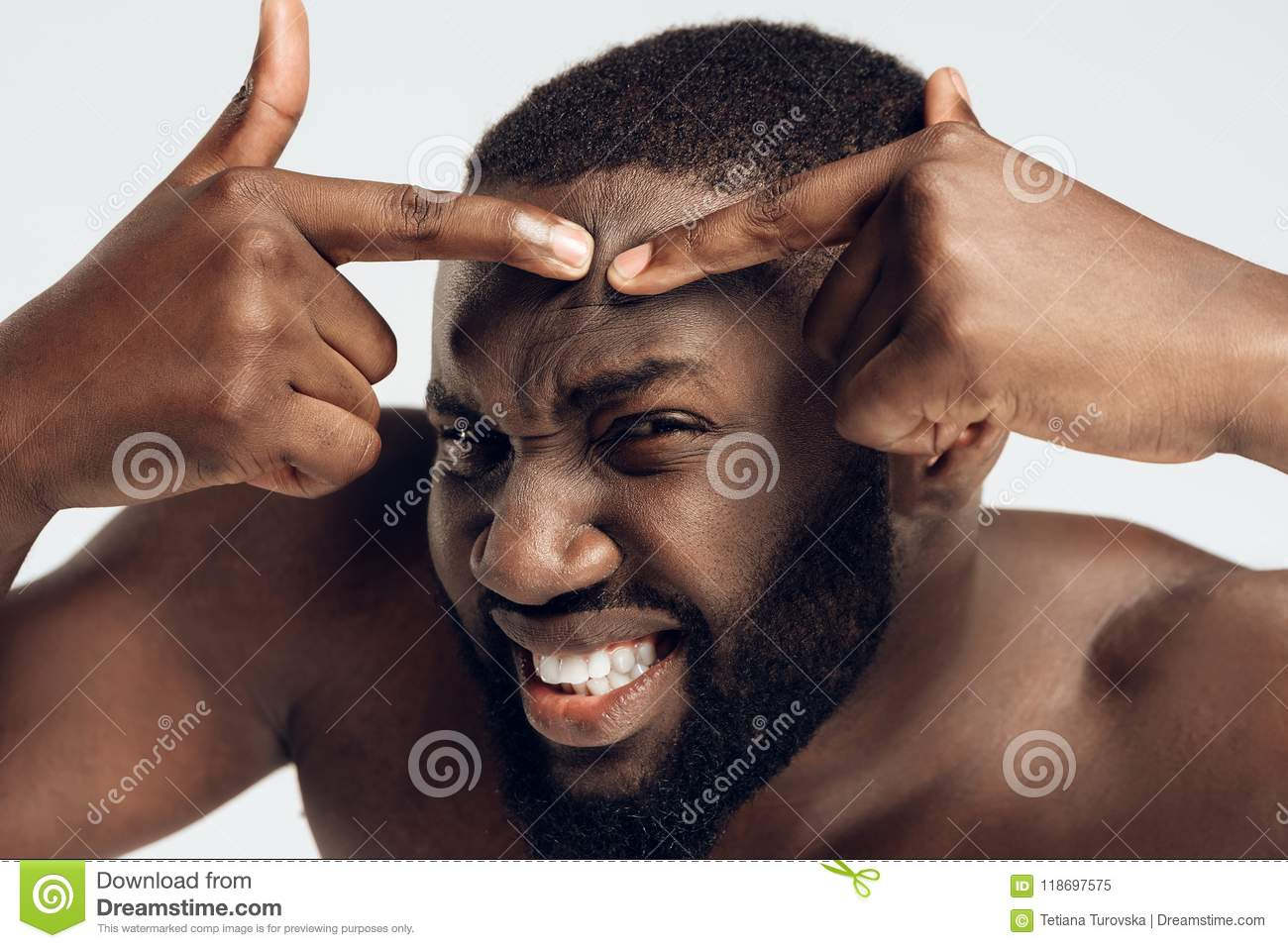 Enduring black man squeezes pimple on face. Acne.