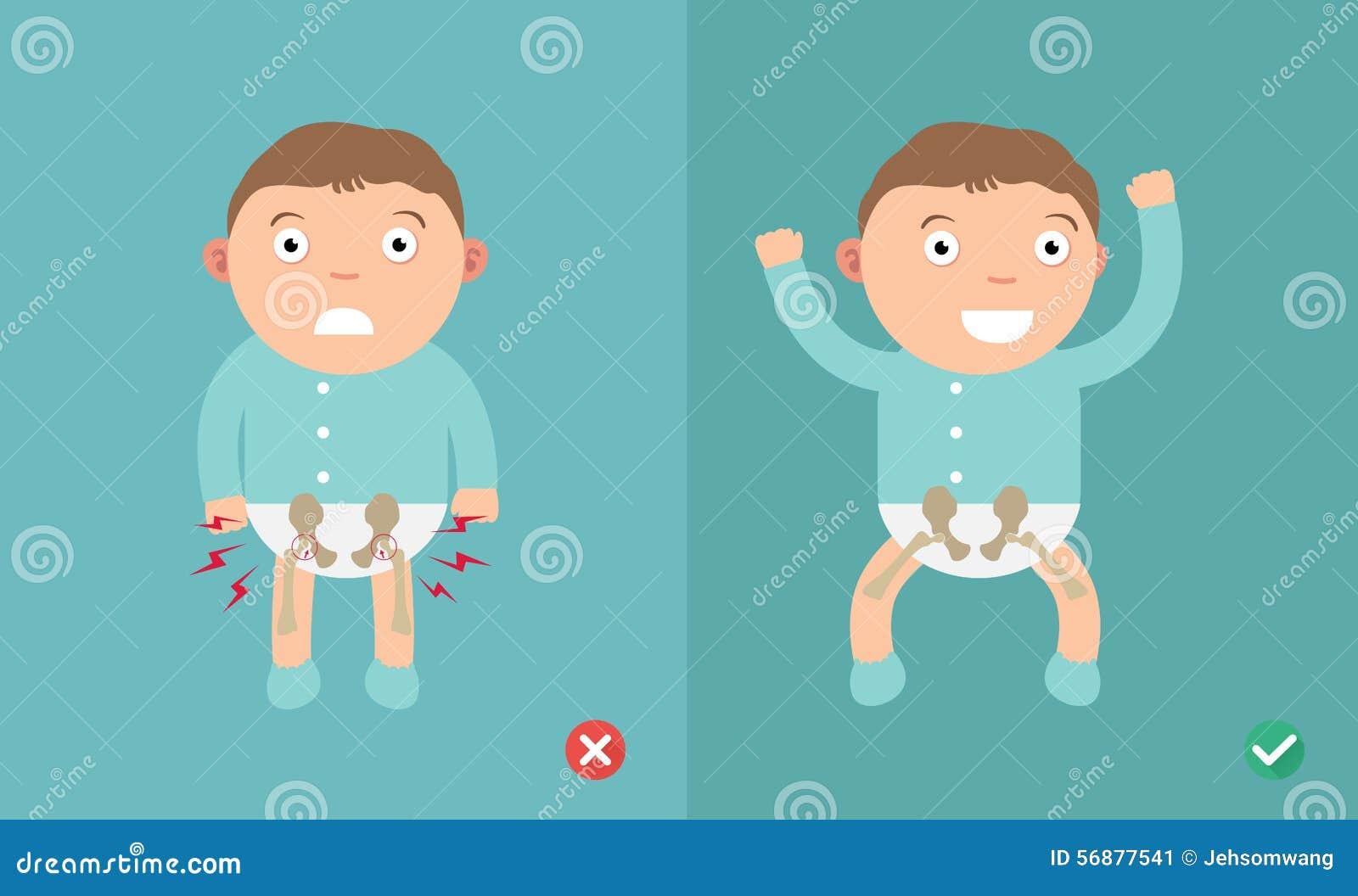 Enfant des meilleures et plus mauvaises positions pour la prévention de la dysplasie de hanche