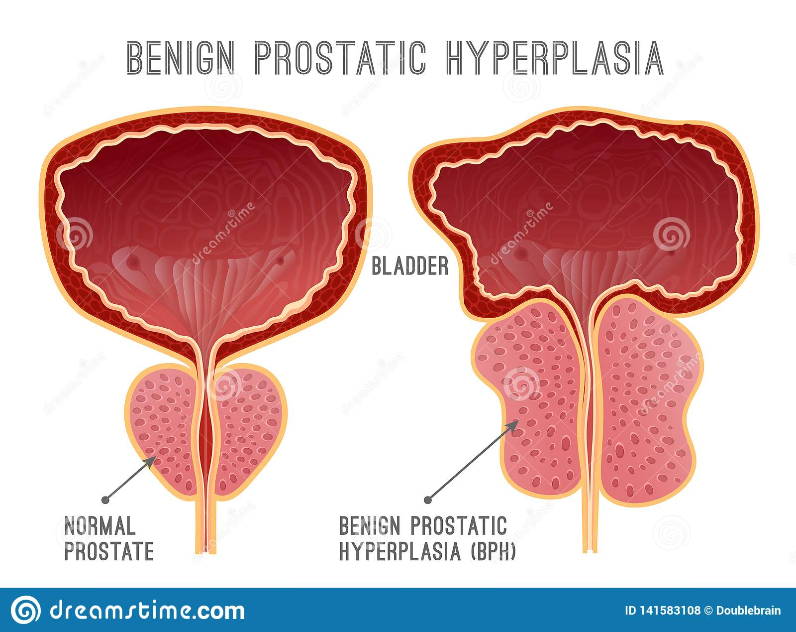 próstata agrandada que sobresale en la vejiga