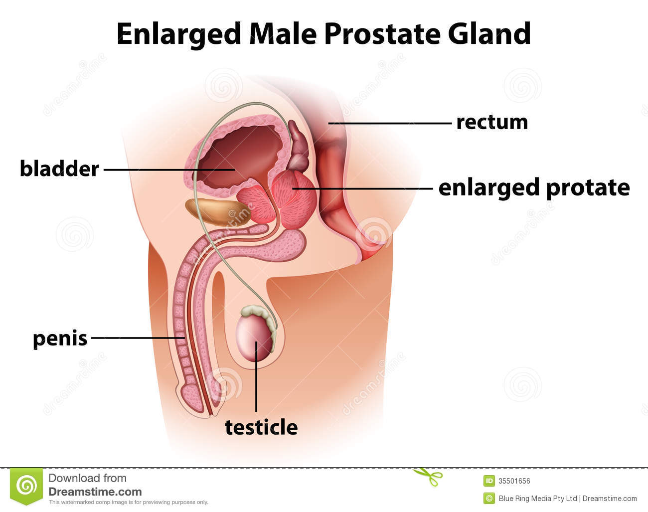 Enlarged Male Prostate Gland Stock Vector - Illustration of growing ...