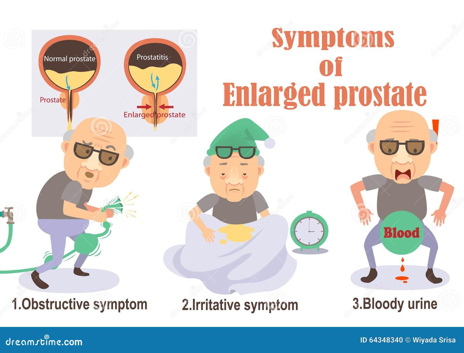 Symptoms of enlarged p... Surgeon Silhouette