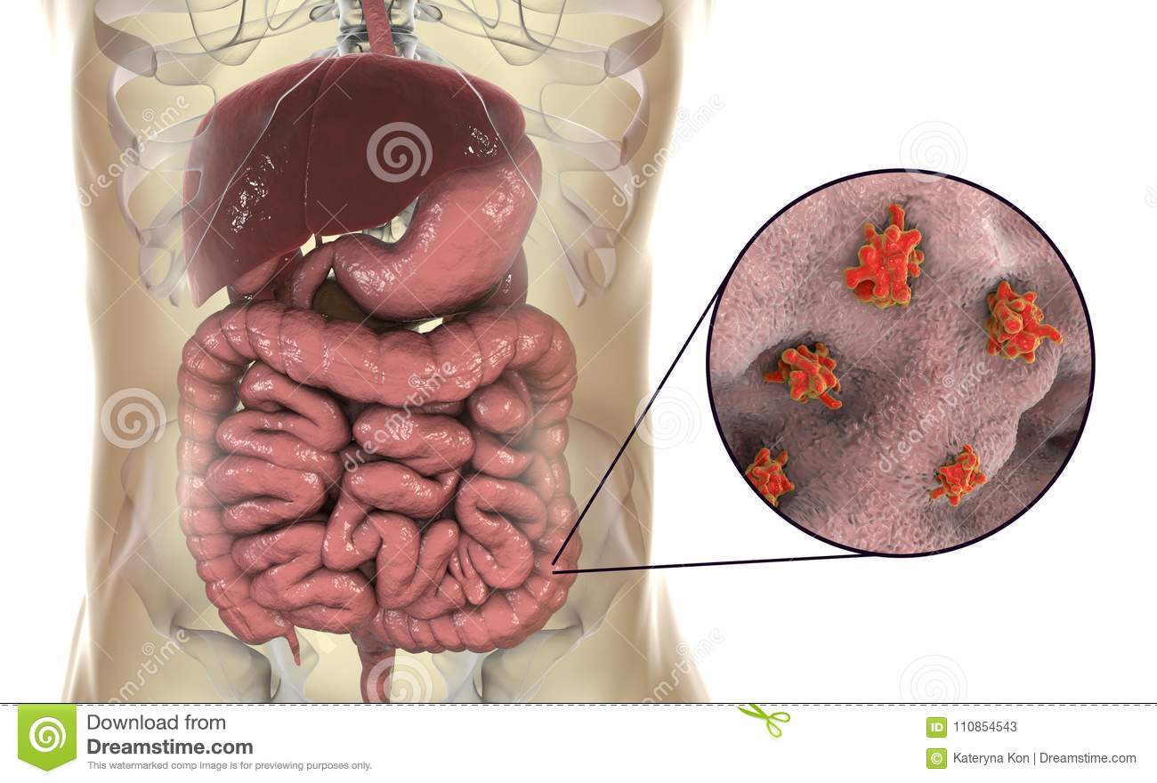 Entamoeba Histolytica Protozoan Infection Of Large Intestine Stock ...