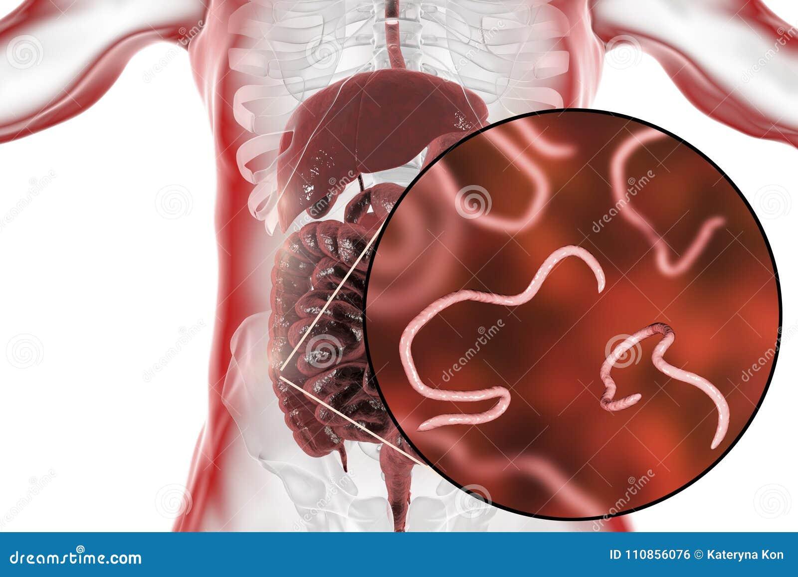 que son helmintos intestinales