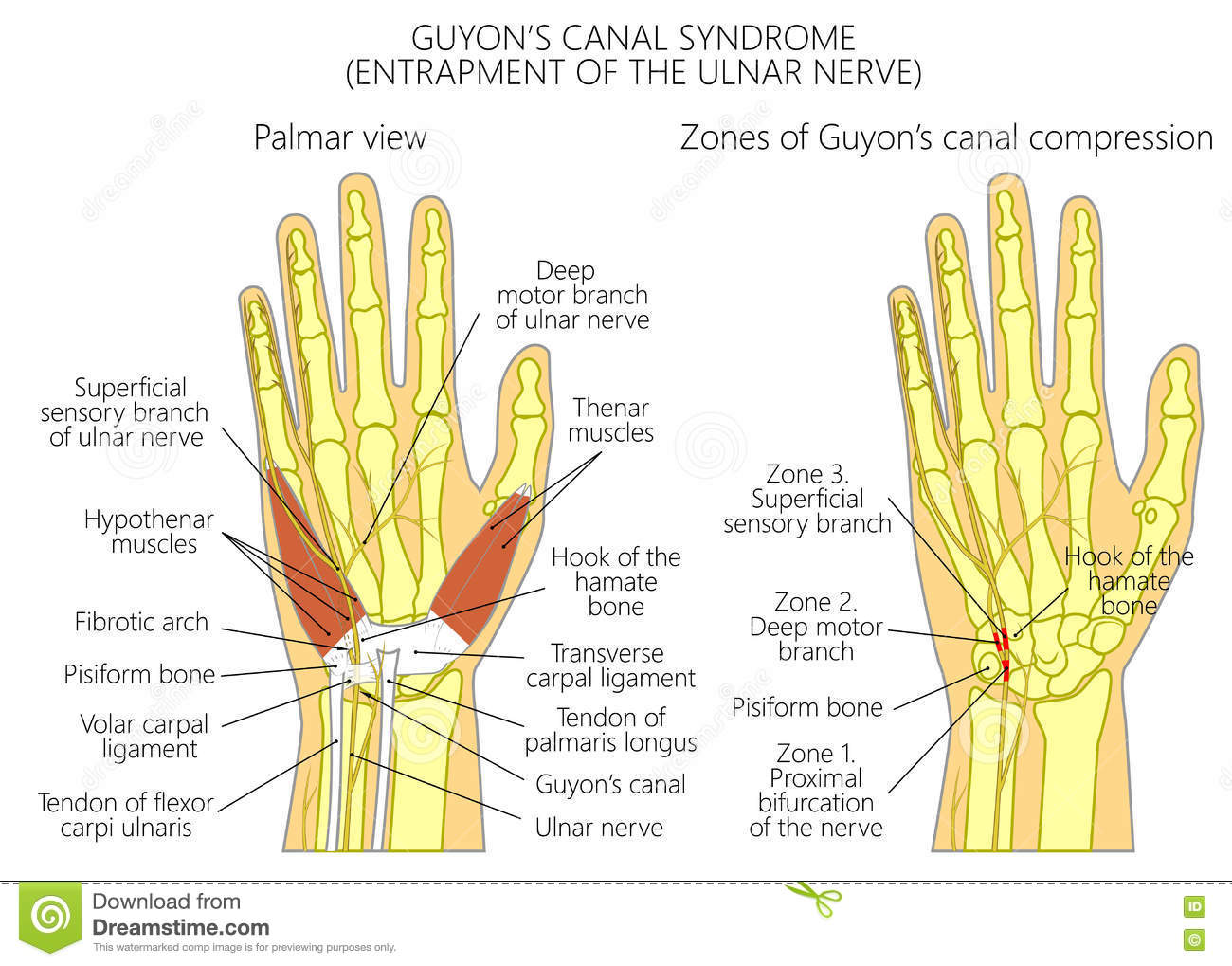Entrapment of the ulnar nerve in the wrist in the Guyon's canal 2