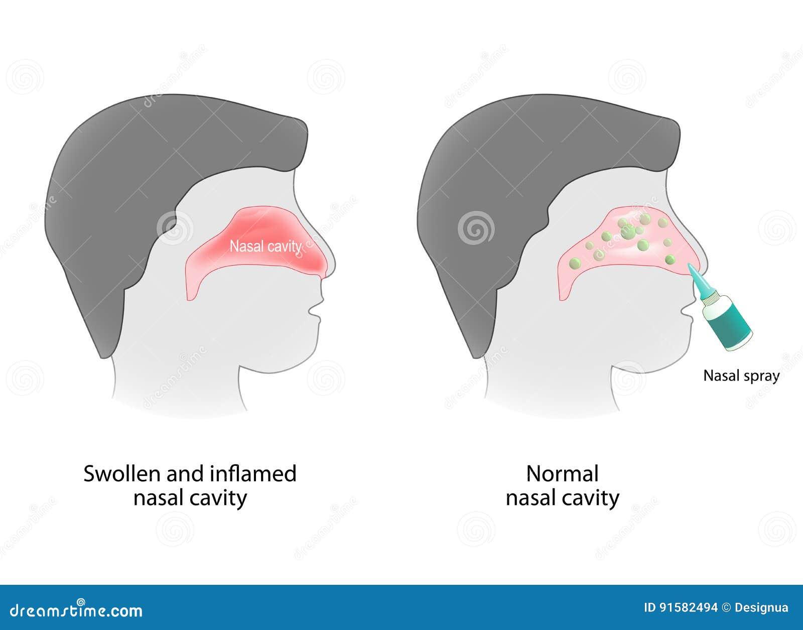 Entzündung Der Nasenhöhle Und Der Nasenhöhle Gesund Vektor Abbildung ...