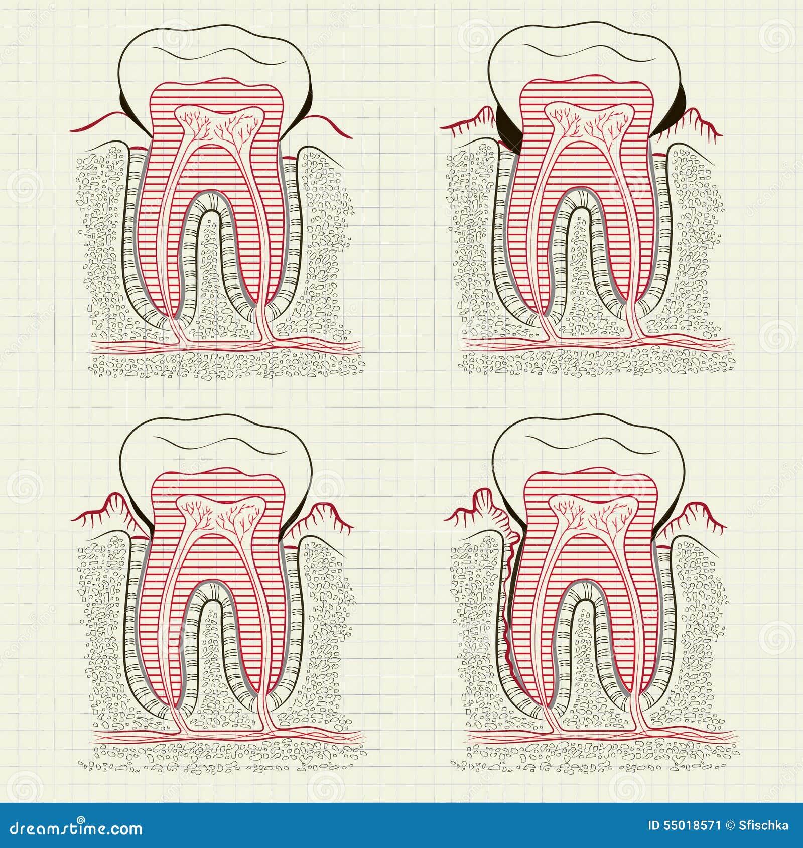 Entzündung Des Zahnfleischs Vektor Abbildung - Illustration von ...