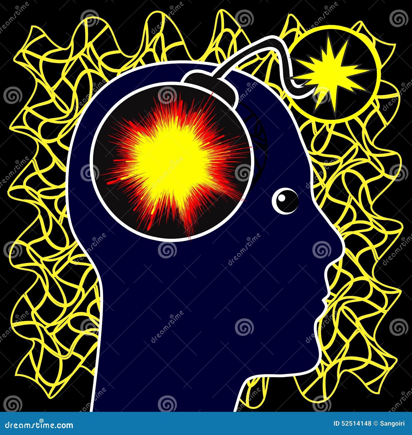 Epilepsy Concept Stock Illustration - Image: 52514148