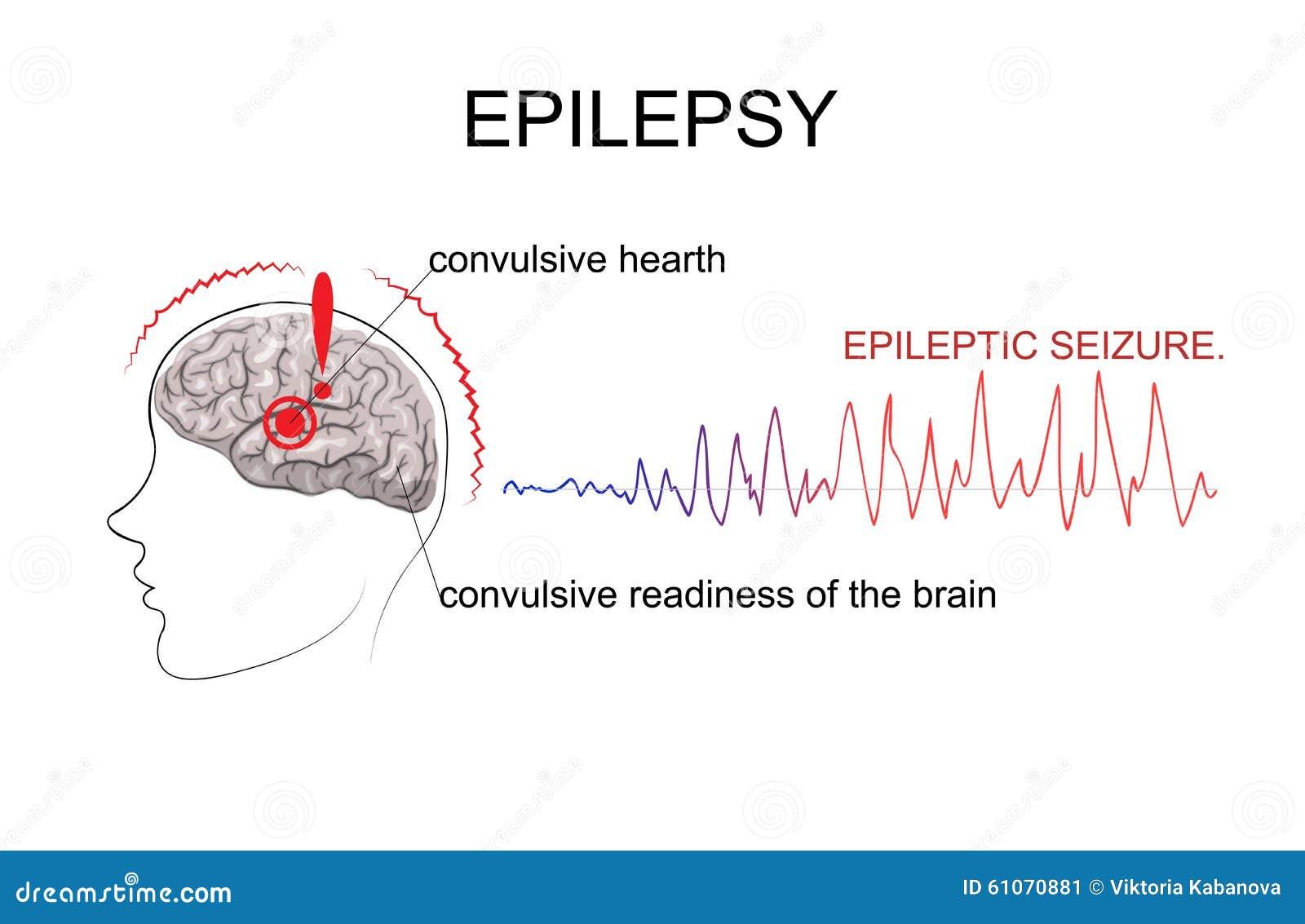 EPILEPSY, factors of emergence Stock Image