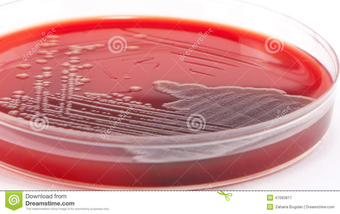 microbiology unknown project on e coli Research papers on bacteria  the evolution of bacteria specific bacteria such as e-coli  this page is designed to show you how to write a research project on.