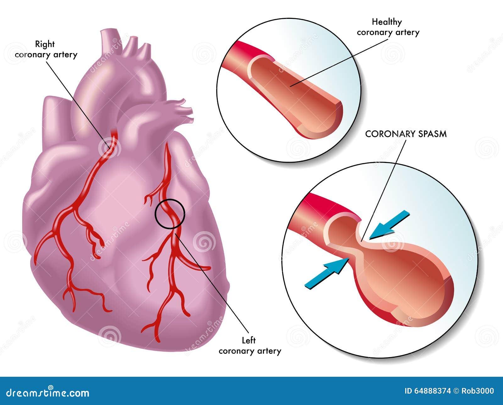 Espasmo De La Arteria Coronaria Ilustración del Vector - Ilustración ...