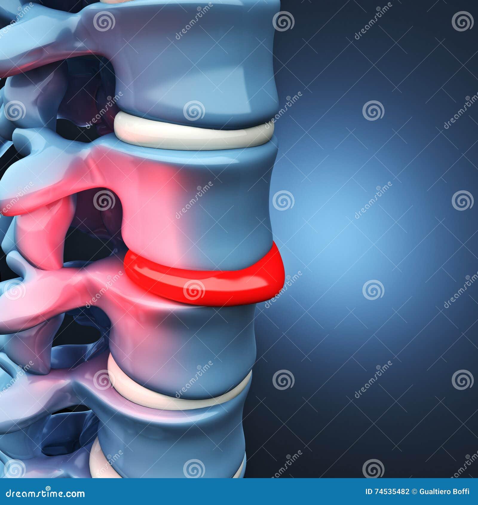 Espinal Humano Del Disco Herniado Stock de ilustración - Ilustración ...