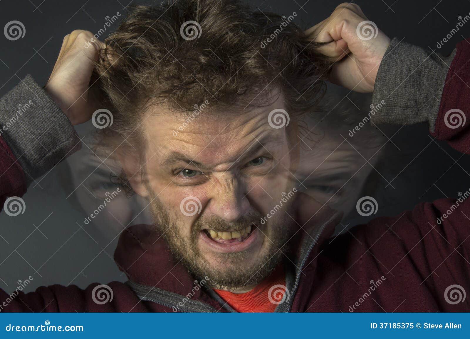 Esquizofrenia - personalidad múltiple