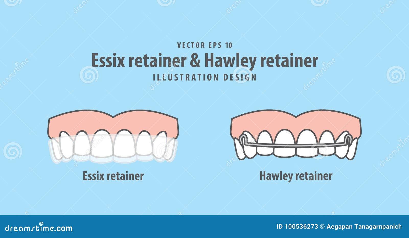 Essix Retainer & Hawley Retainer Illustration Vector On Blue