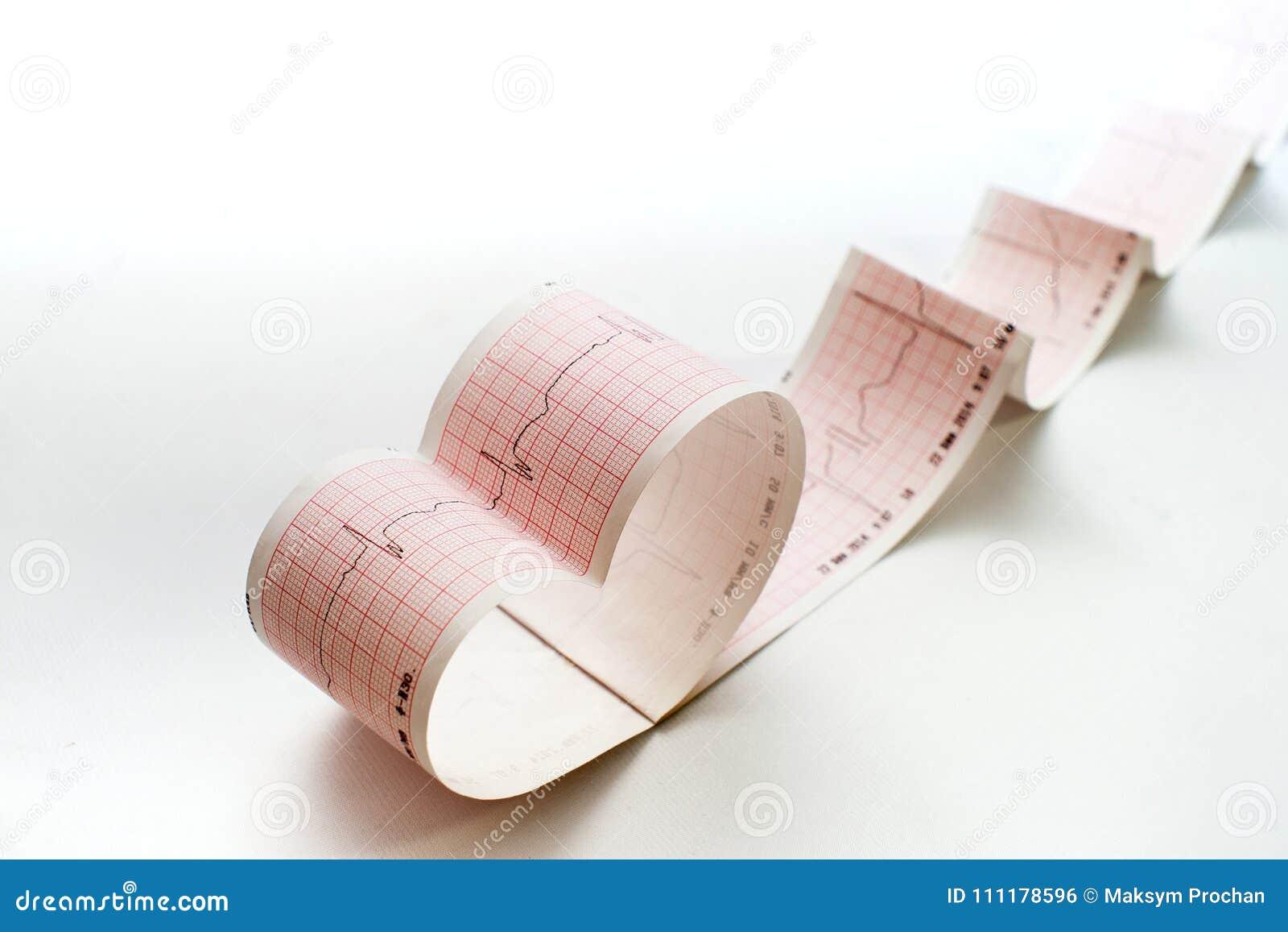 Estetoscopio en el gráfico del electrocardiograma