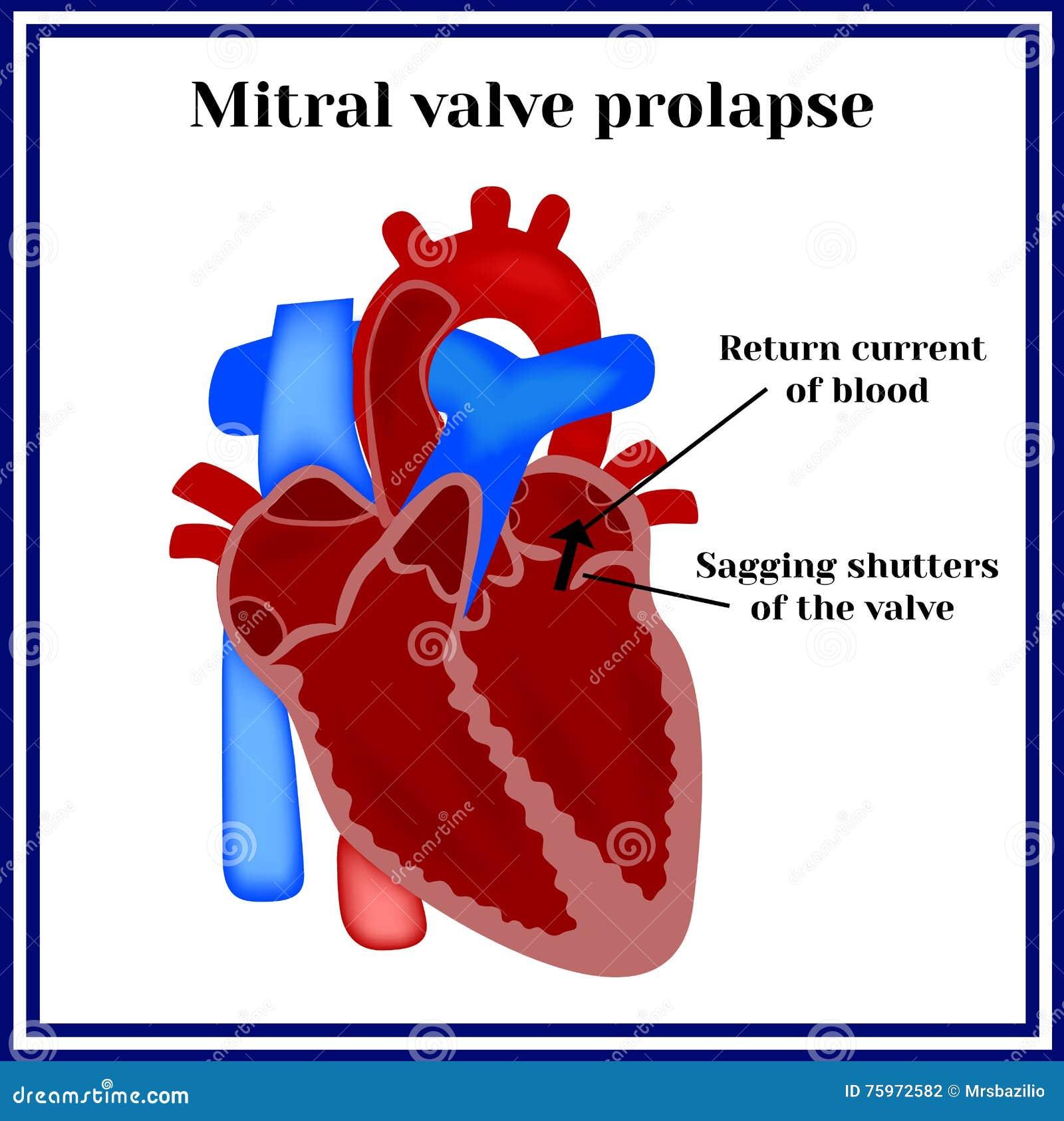 Estrutura Do Coração Prolapso De Válvula Mitral Patologia