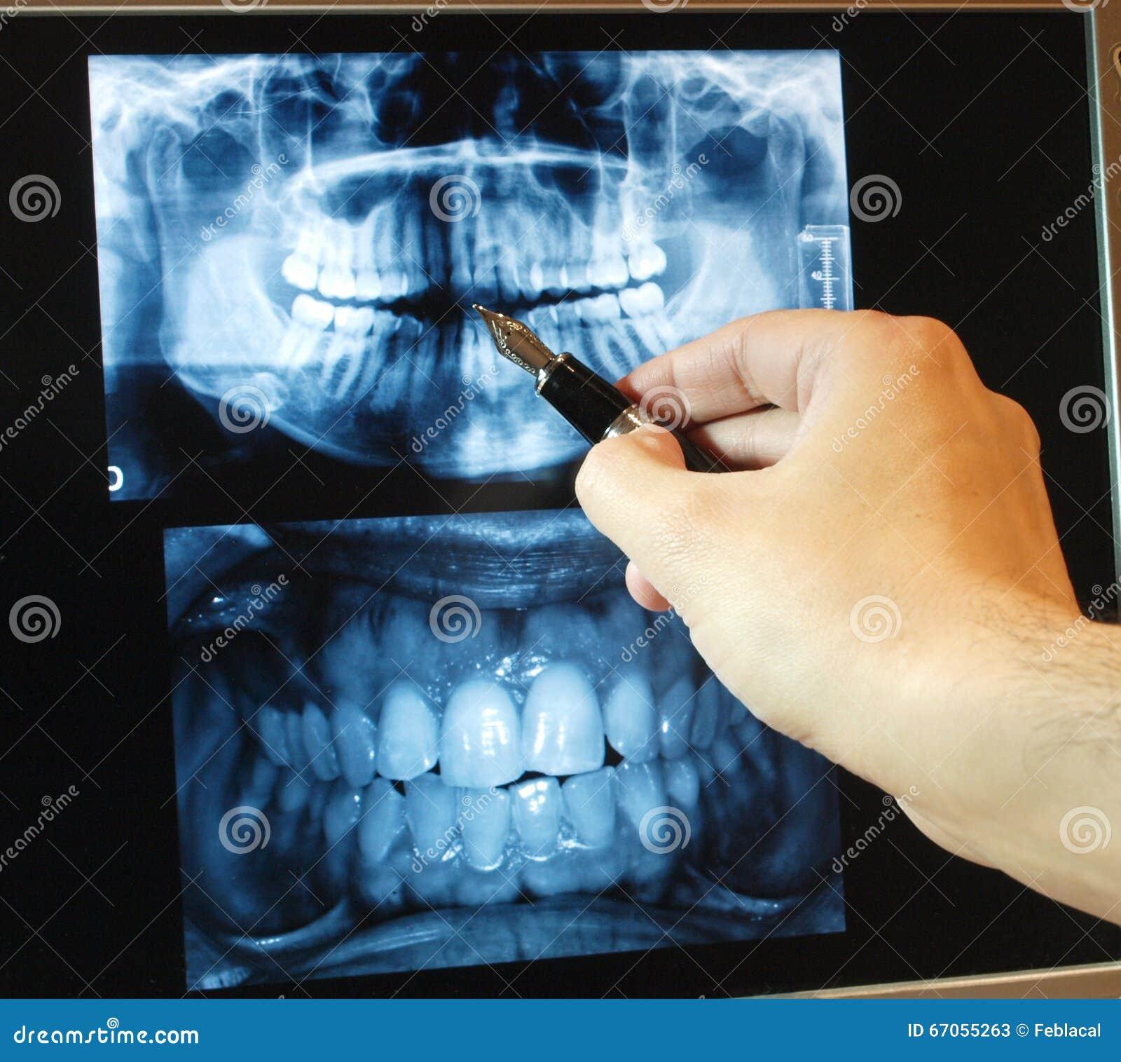 Estudio Dental Panorámico De La Radiografía Imagen de archivo ...