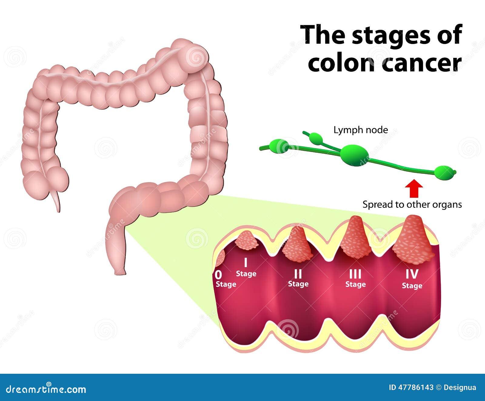 Etapperna av Colorectal cancer