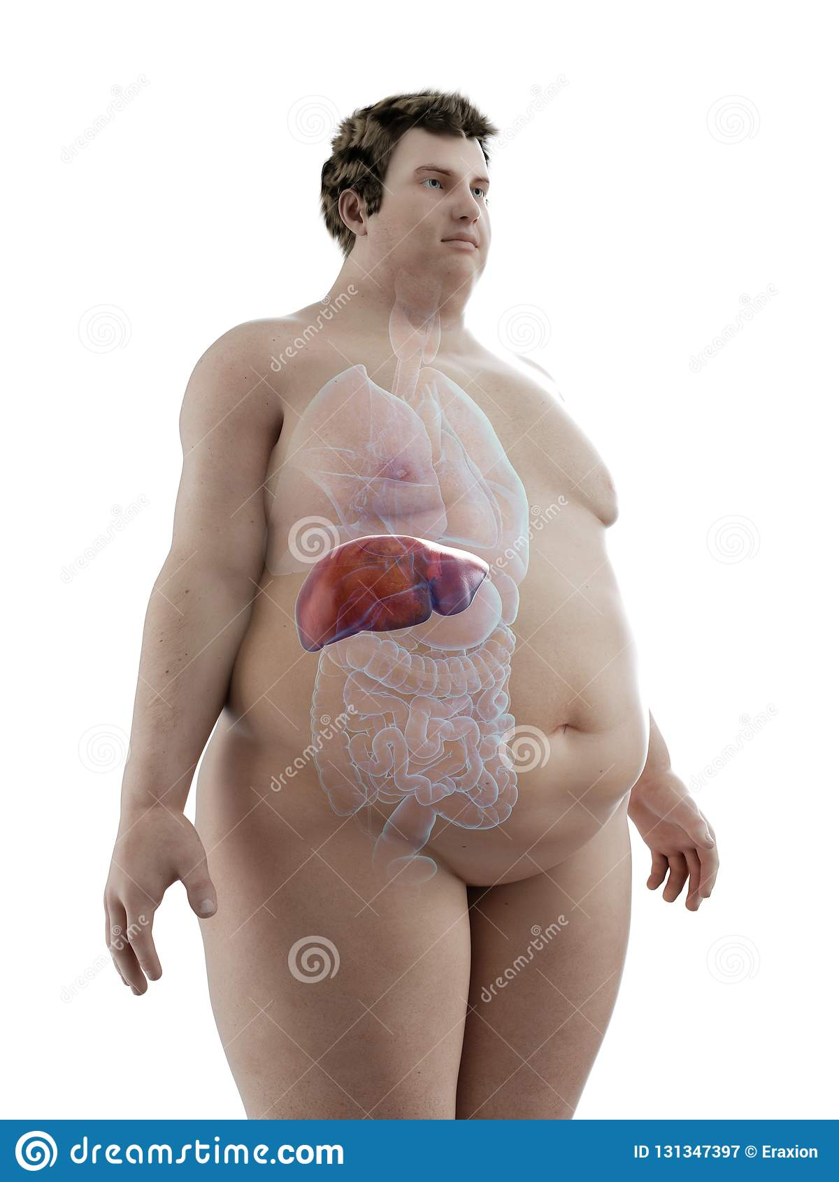 Ett sjukligt fett mans lever