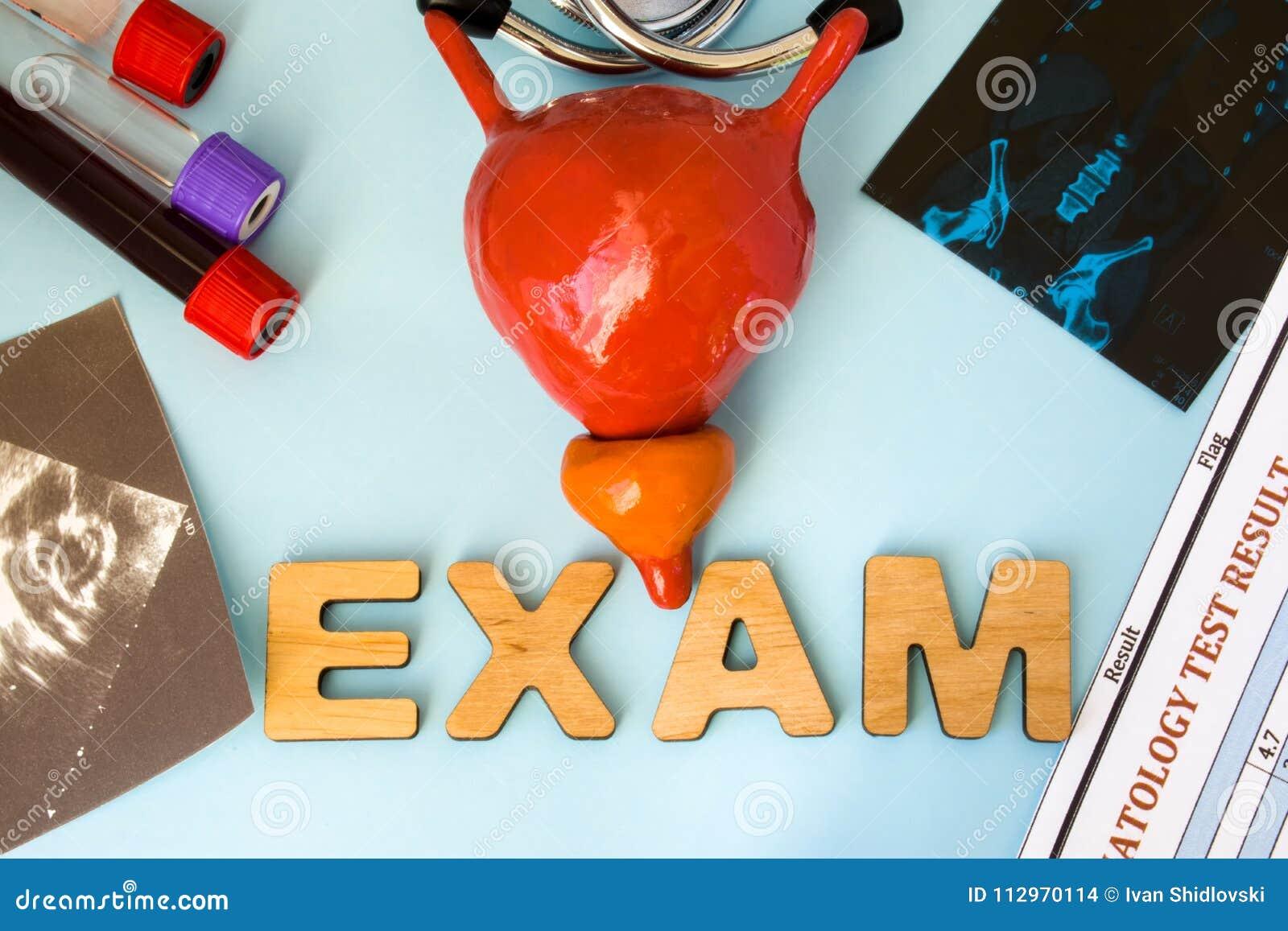 Examen En Examen De La Vejiga De La Orina De La Urología Y Glándula ...