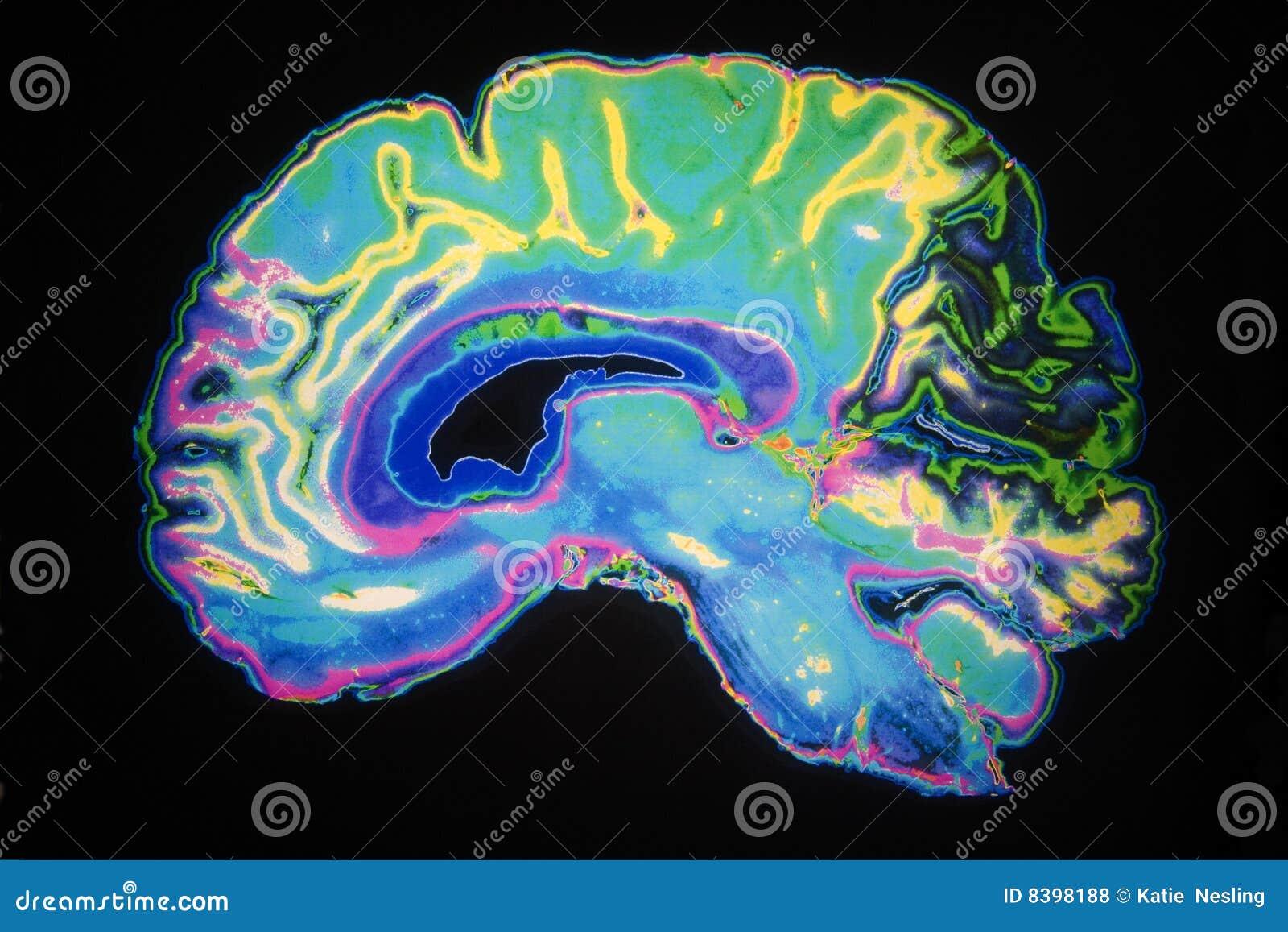 Exploración coloreada de MRI del cerebro humano